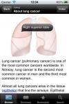 Lung Cancer iOncolex screenshot 1/1