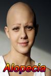 Alopecia Disease screenshot 1/3