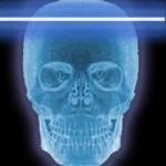 X-Ray Scanner PRO SE screenshot 1/3