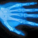 X-Ray Scanner PRO SE screenshot 2/3