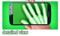 X-Ray Photo Video Booth screenshot 2/3