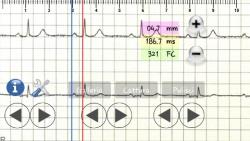 ECG pratico active screenshot 3/6
