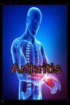 Arthritis Disease screenshot 1/3