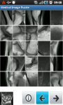 Puzzle of Medical Images screenshot 6/6