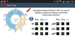 ECG pratico full screenshot 4/6