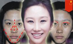 Surgery Simulation screenshot 4/4
