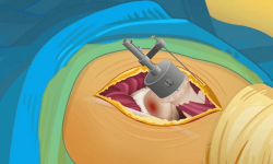 Virtual Surgery - Hip Surgery screenshot 4/4